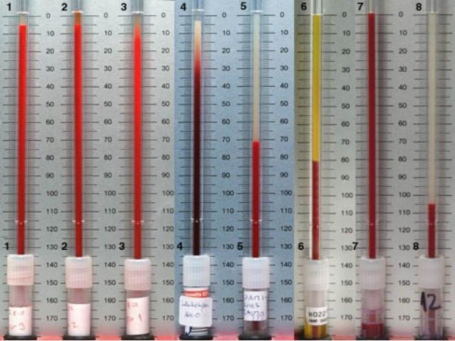 последствия повышенного холестерина в крови