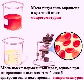 Как выявить кровь в моче