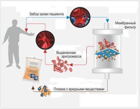 Таблетки или плазмаферез