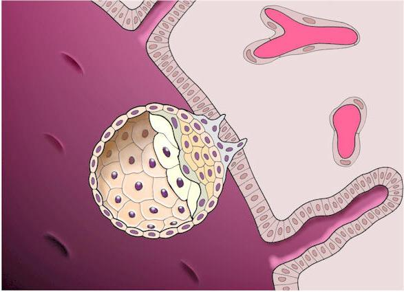 Имплантационное кровотечения – что это