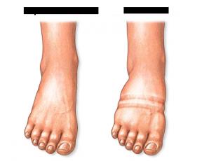 Резкая боль в ногу при беременности