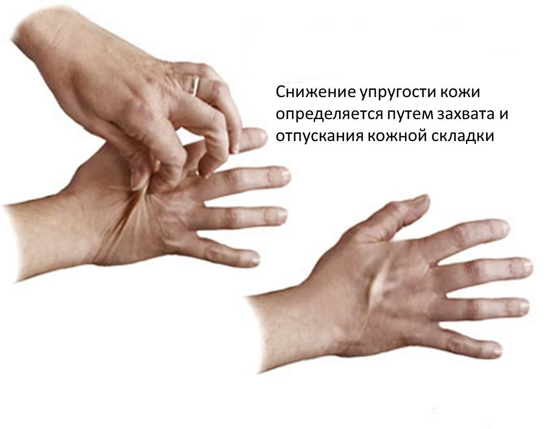 Симптоматика проявлений