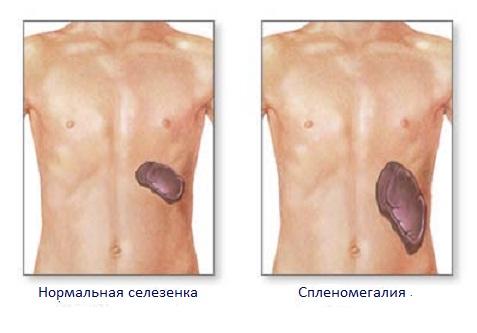 Симптоматика на разных стадиях