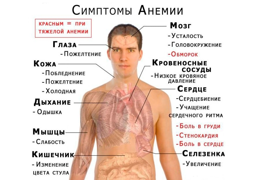 после отмены статинов пройдут ли мышечные боли