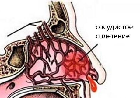 Почему начинается носовое кровотечение
