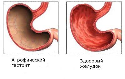 Причины заболевания и сопутствующие факторы