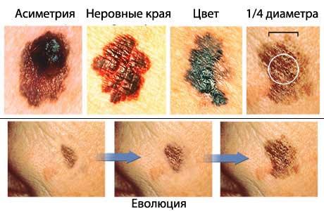 Причины кровотечения