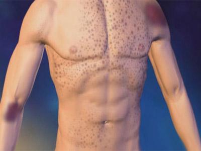 Особенности тромбоцитопении