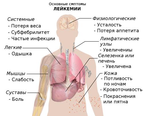 Клиническая картина симптомов