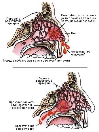 Кровь из передних и задних носовых проходов