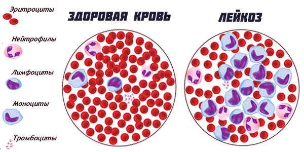 Лейкозные клетки