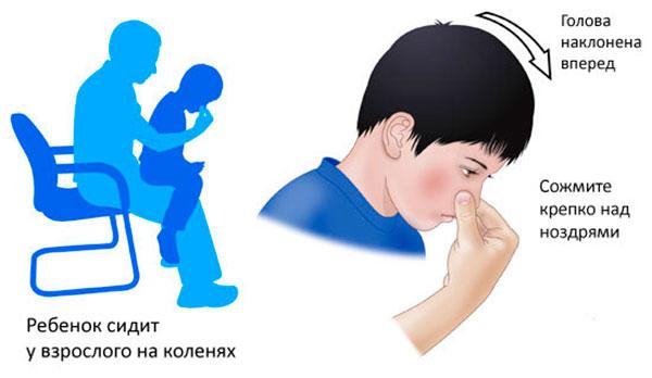 Носовые кровотечения в детском возрасте