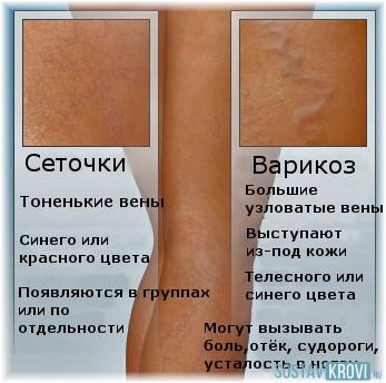 Варикозное сетка на ногах лечение в домашних условиях