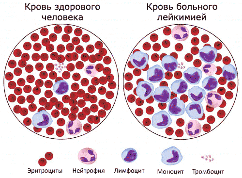 Высокие лимфоциты
