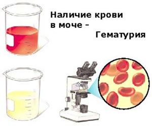 Как можно увидеть кровь