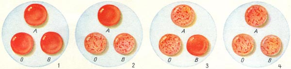 Система групп крови