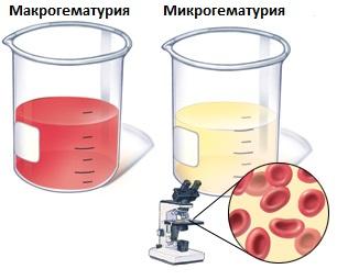 Как выявить гематурию