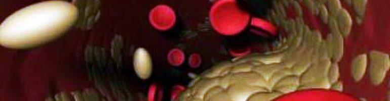 Нормальный показатель холестерина в крови