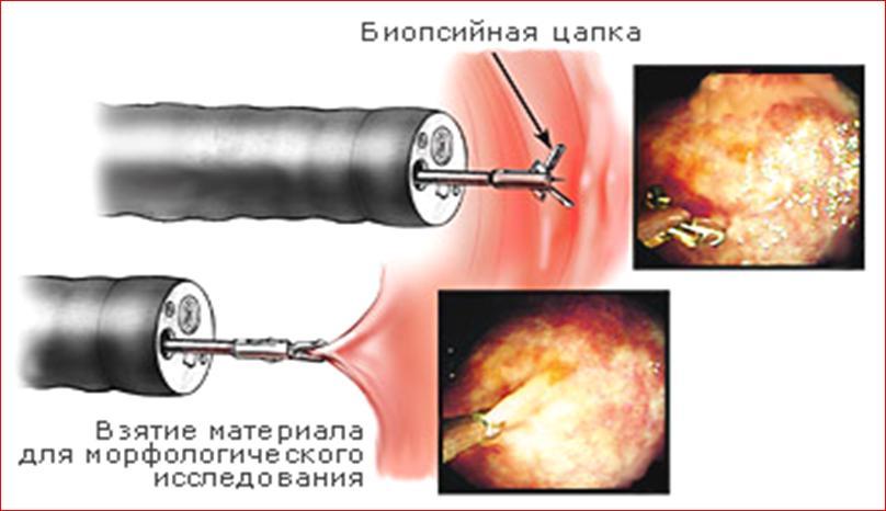 Зачем делать биопсию