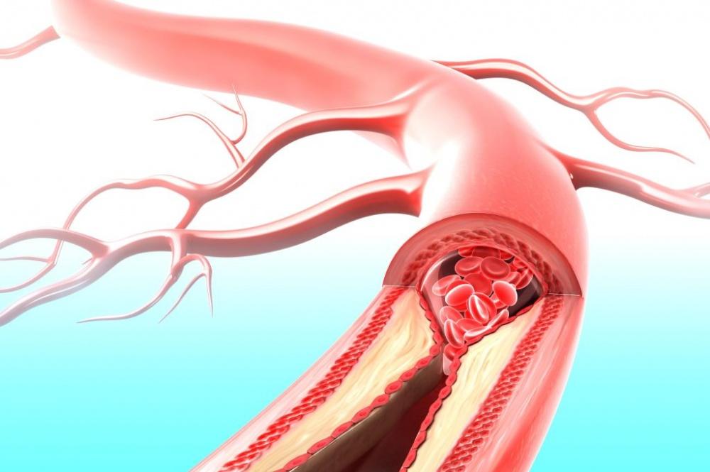 Важность значения уровня гемоглобина