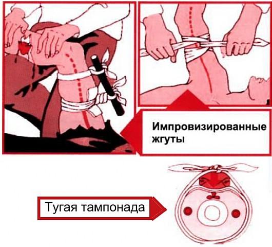 Остановка кровопотери из различных артерий