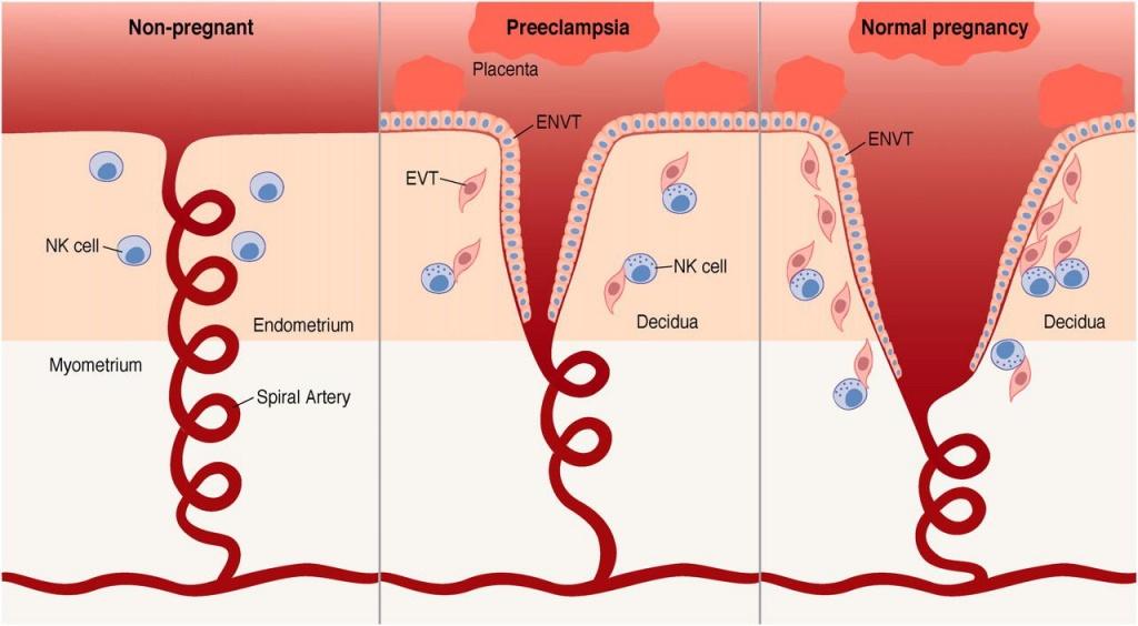Фибриноген повышен при беременности форум