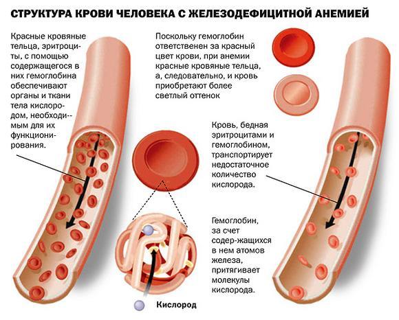 Железодефицитна анемия