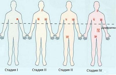 Стадии развития лимфатических опухолей