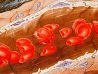 Заболевание крови талассемия