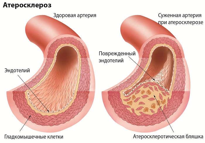 Действие при атерогенезе и атеросклерозе