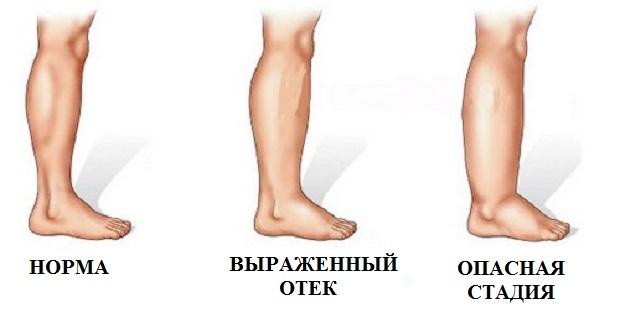 Симптомы по типу заболевания