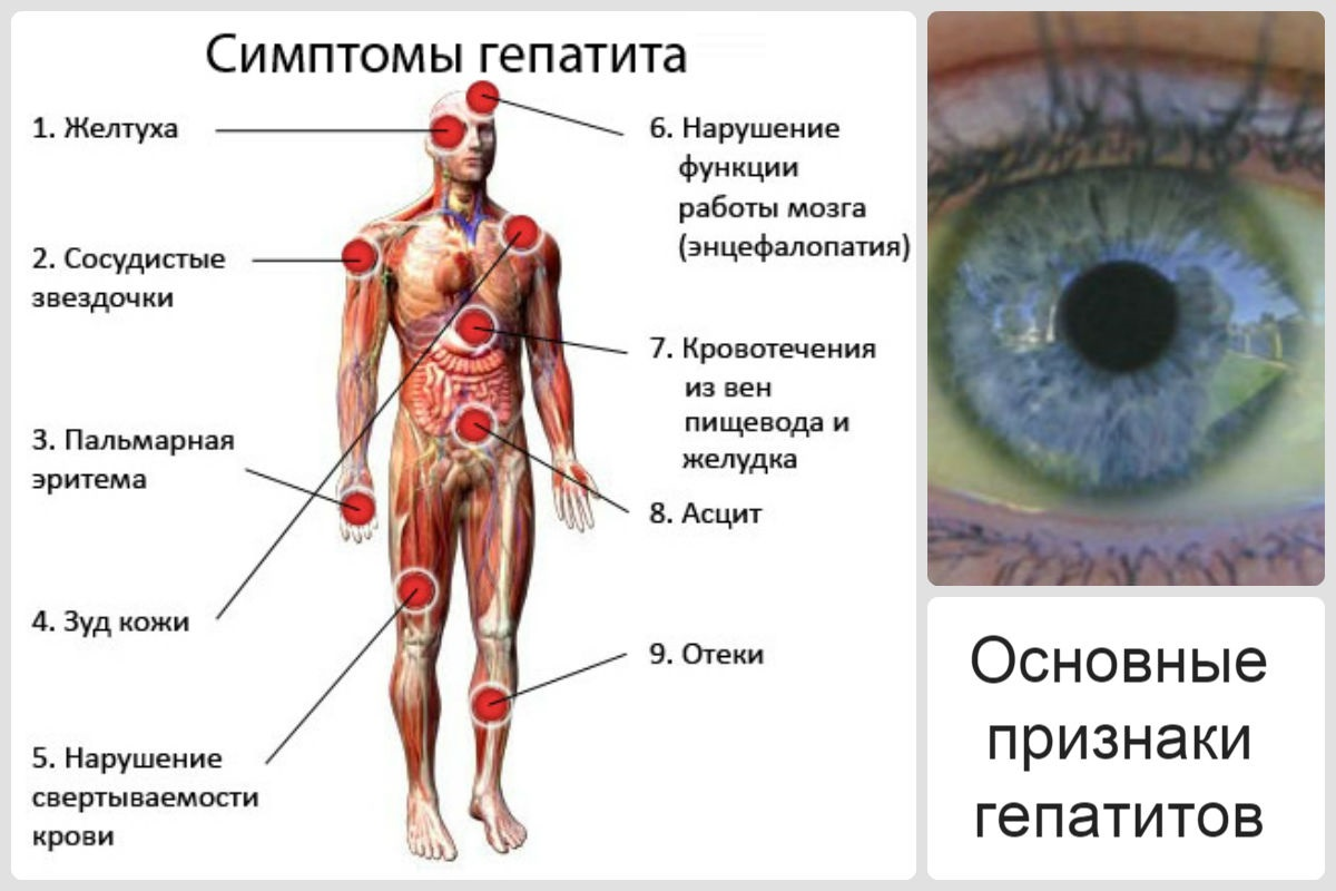 Виды и формы гепатитов