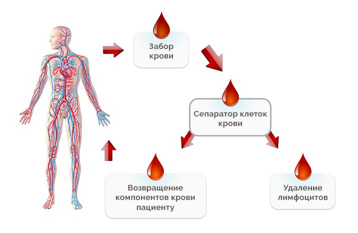 Лимфоцитаферез
