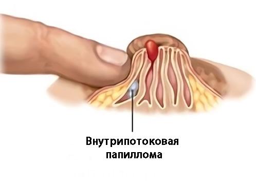 Заболевания, сопровождающиеся выделением крови