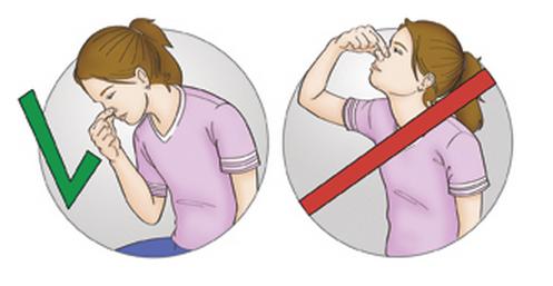 Что делать при носовом кровотечении