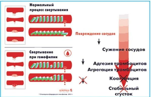 Определение гемофилии