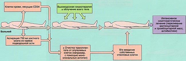 Методы лечения лейкозов