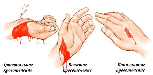 Как отличить артериальное кровотечение от венозного