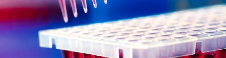 Исследование крови методом иммуноферментного анализа