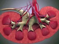 Гемолитико-уремический синдром Гессера