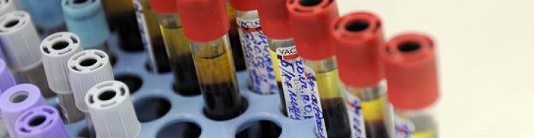 Исследование серологического анализа крови