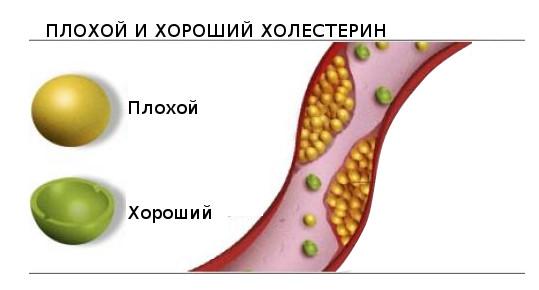 Разница плохого и хорошего холестерина