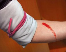 Какая длительность кровотечения по времени