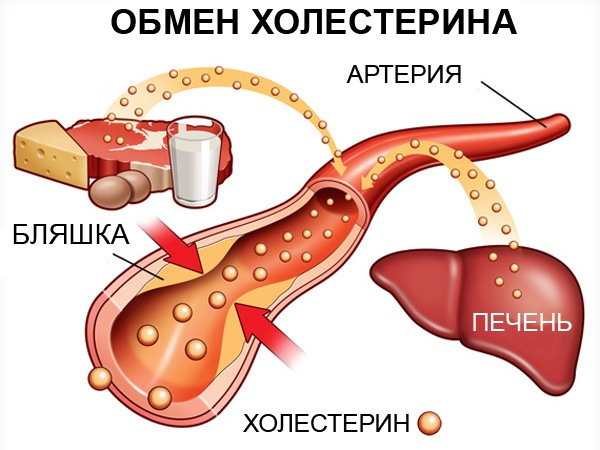 При стенозирующем атеросклерозе лечение