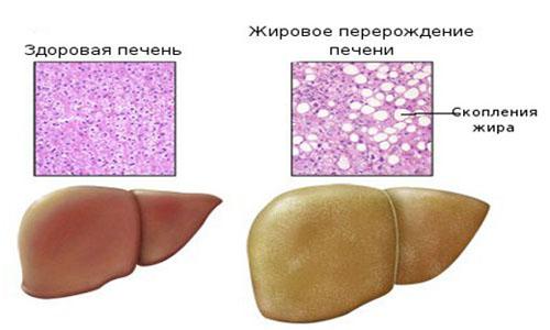 Развитие жирового обмена