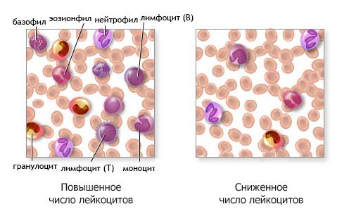 Виды лейкопении