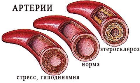 Высокий тромбокрит