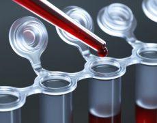 Современная диагностика крови на тромбокрит