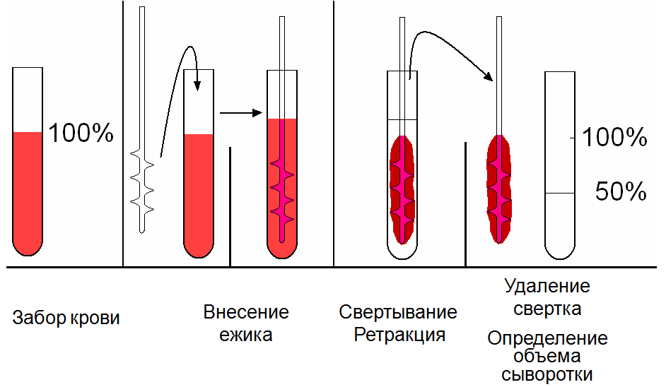 Особенности процесса кровотечения