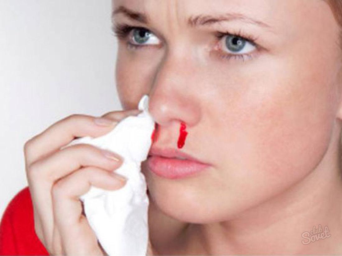 Симптомы миелобластного лейкоза